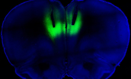 Optogenetic stimulation using laser pulses lights up the prelimbic cortex.