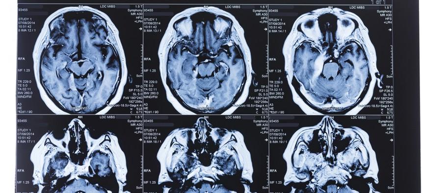 MRI scans of the human brain
