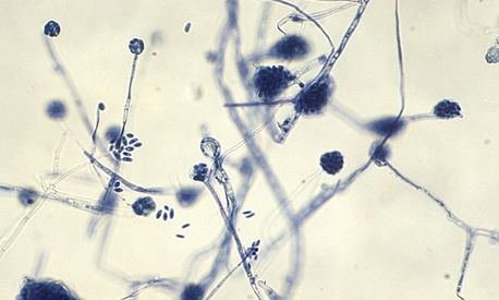 A. falciforme fungus is a known causative agent for diseases such as meningitis.