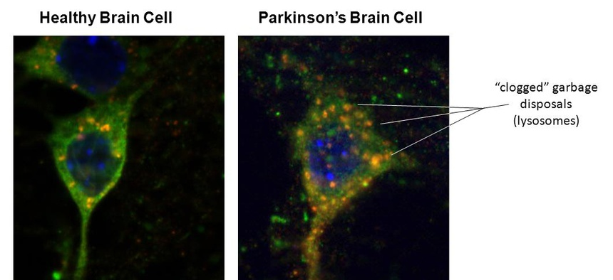 Left - Healthy neuron with alpha-synuclein (green) protein. Red dots are trash lysosomes with alpha-synuclein entering, hence an orange hue. Right - Sick neuron from LRRK2 brain. Lysosomes are enlarged as the alpha-synuclein is unable to enter the trash.