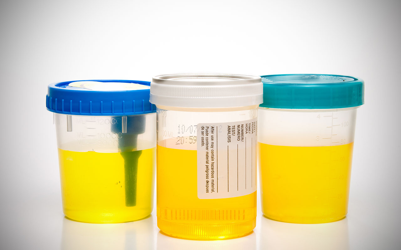 трехстаканная проба при лейкоцитозе мочи