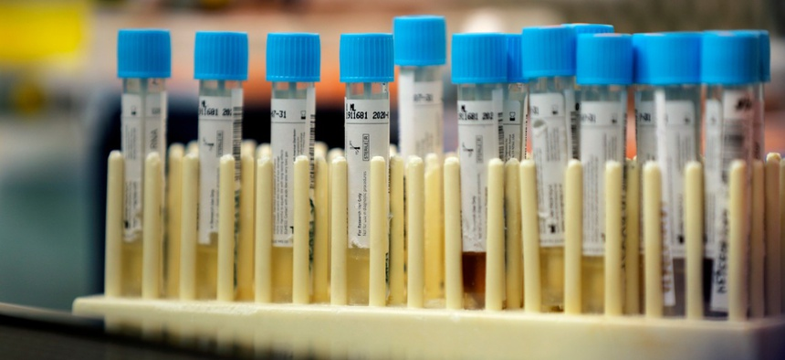 Vials with samples taken for the new coronavirus are seen before they are prepared for RNA testing at the molecular pathology lab at Tulane University School of Medicine in New Orleans.